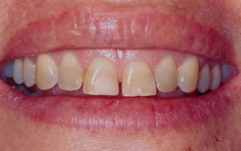 Cosmetic Veneers Brisbane