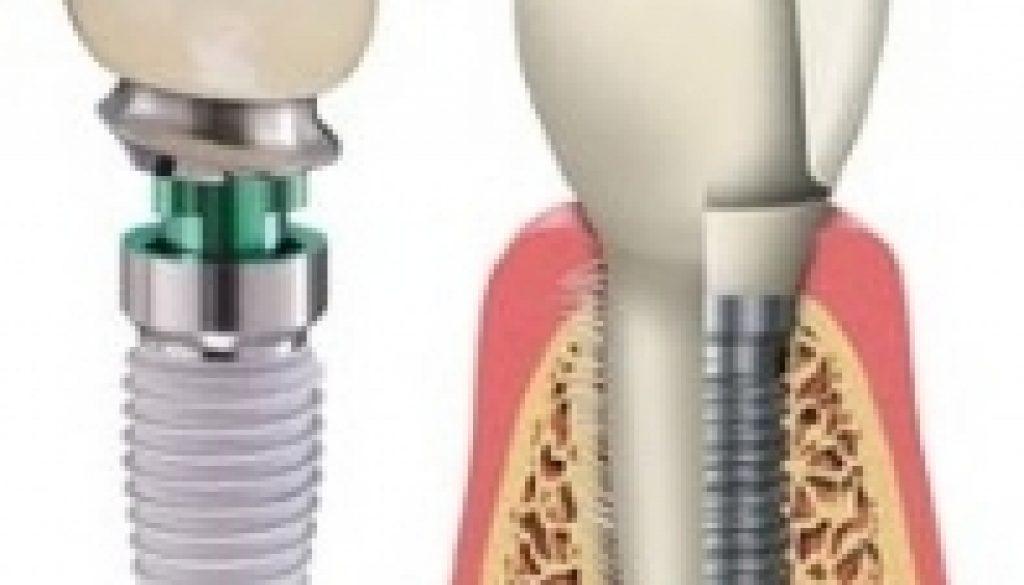 Implant Blog #1