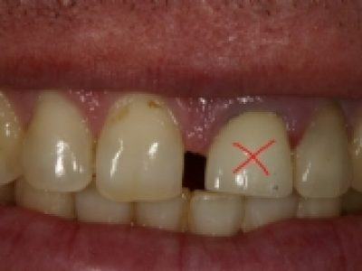 Do I need to have all teeth out to have Implants?