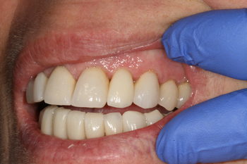 Dental implants Caboolture