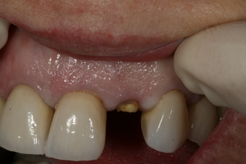 Dental implants Morayfield