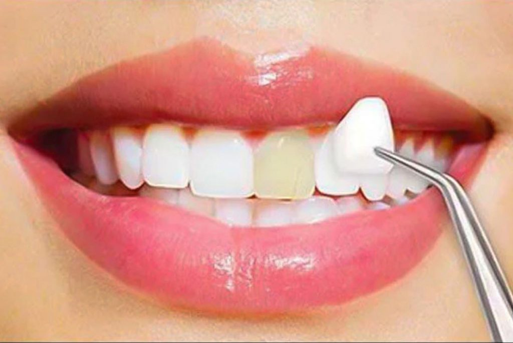 Dental Veneers Caboolture