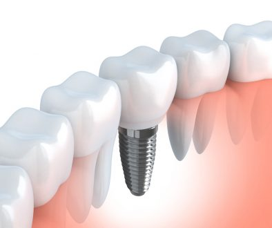 Tooth human quality dental implants (done in 3d graphics)