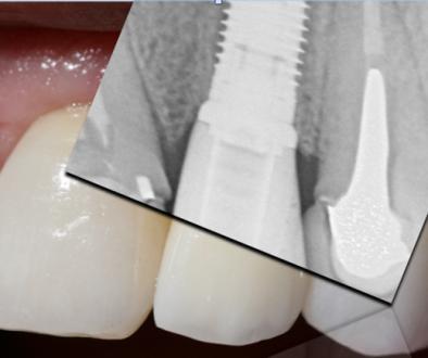 Dental Implants Mc Cloy Dental